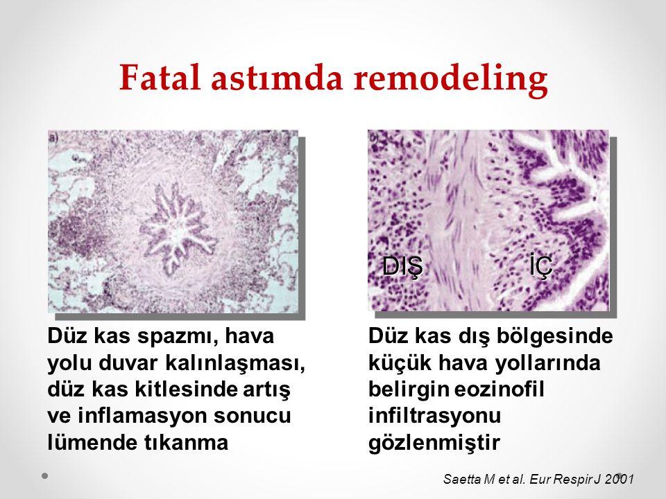 Fatal astımda remodeling