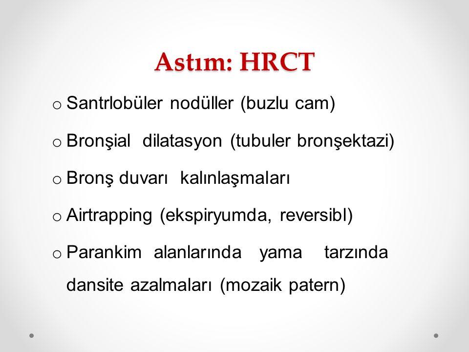 Astım: HRCT Santrlobüler nodüller (buzlu cam)