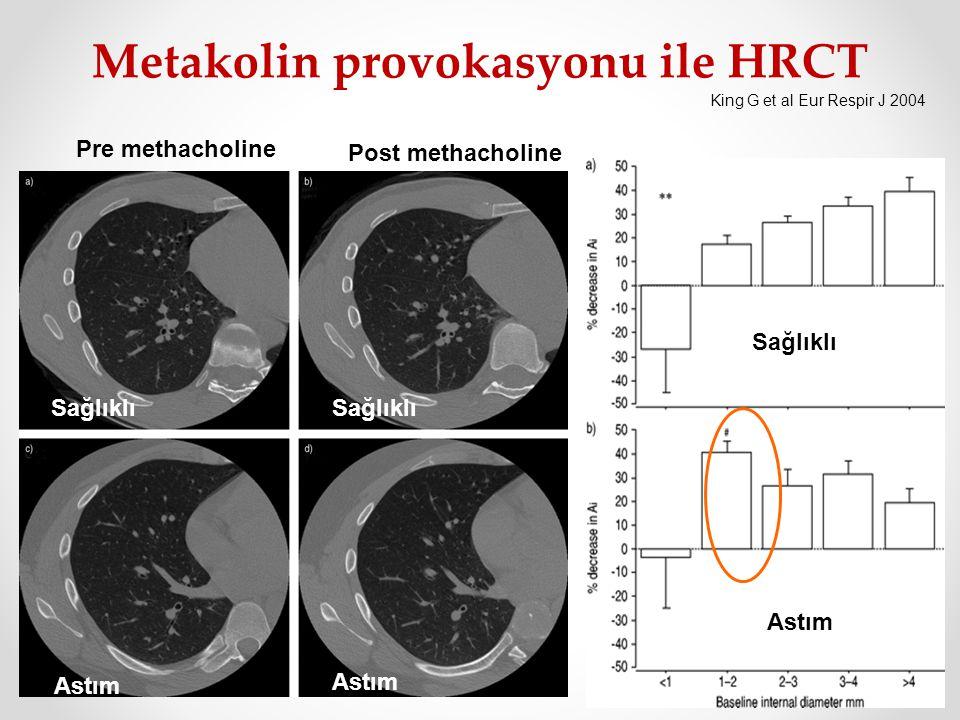 Metakolin provokasyonu ile HRCT