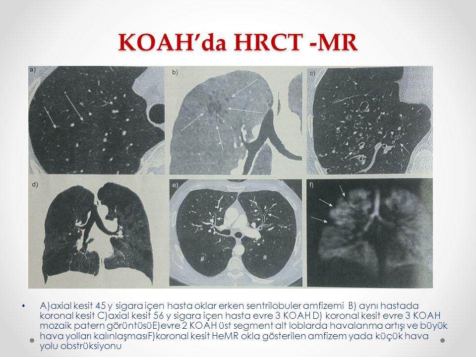 KOAH'da HRCT -MR