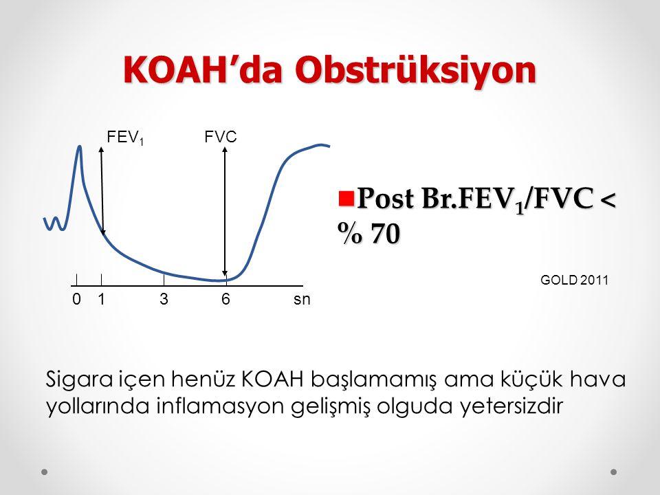KOAH'da Obstrüksiyon Post Br.FEV1/FVC < % 70