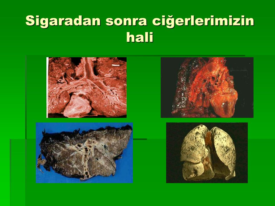 Sigaradan sonra ciğerlerimizin hali