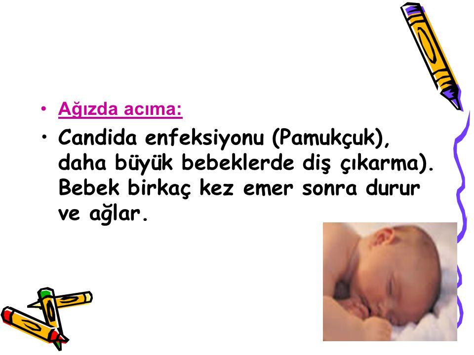 Ağızda acıma: Candida enfeksiyonu (Pamukçuk), daha büyük bebeklerde diş çıkarma).