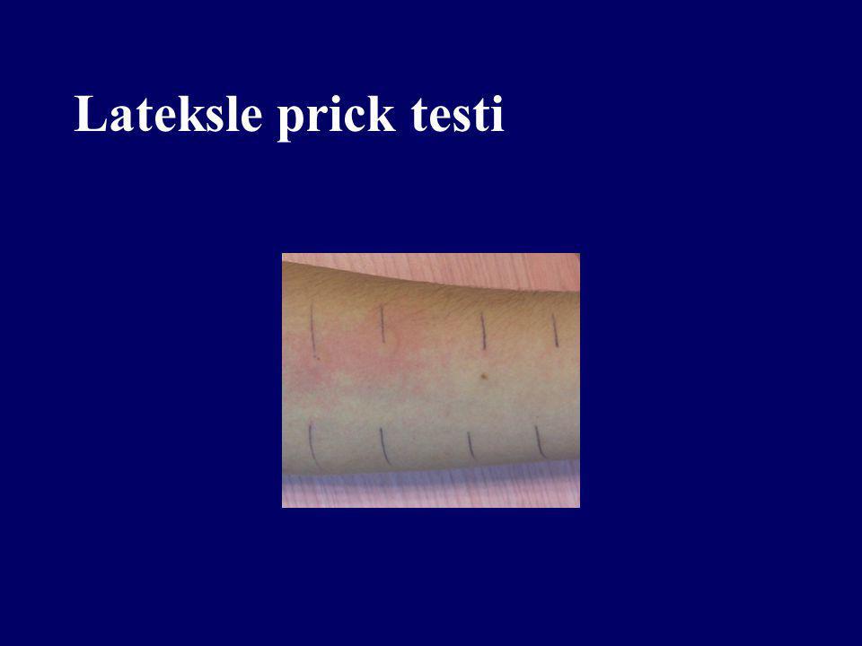 Lateksle prick testi