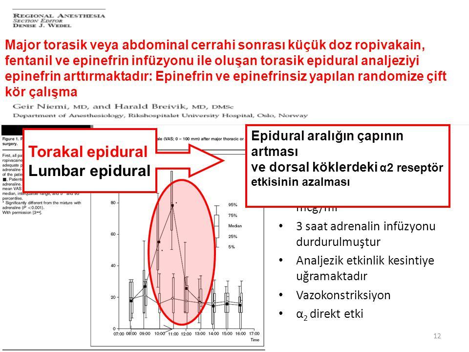 Torakal epidural Lumbar epidural