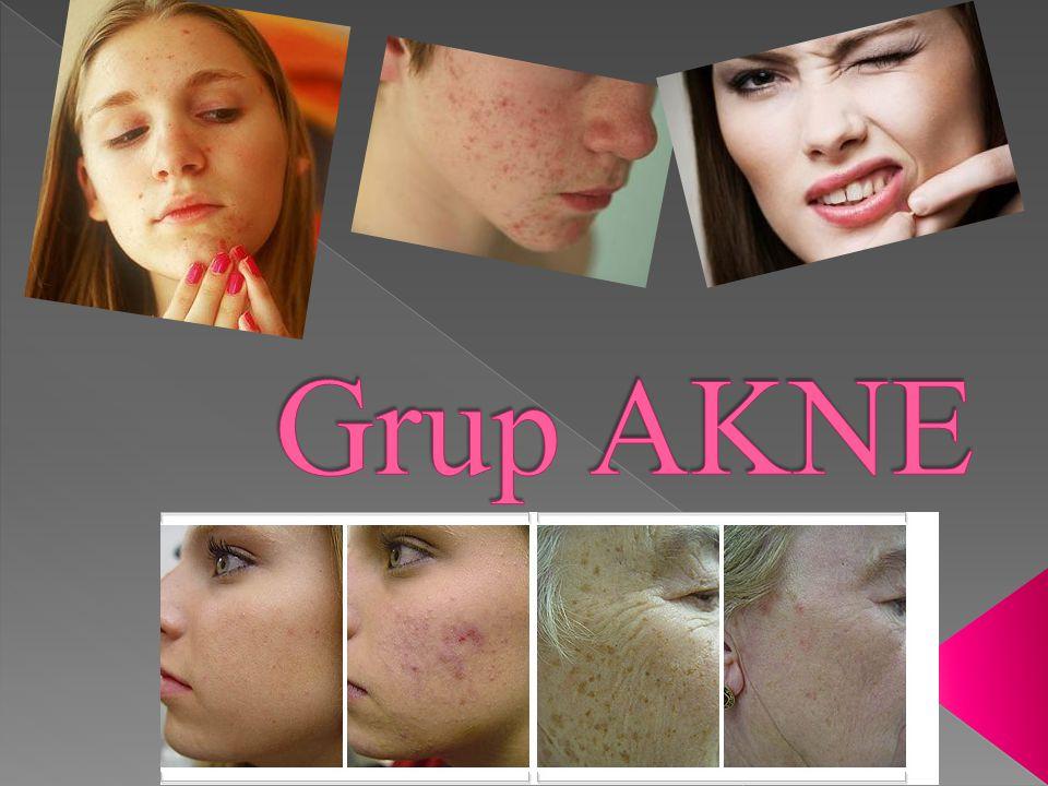 Grup AKNE