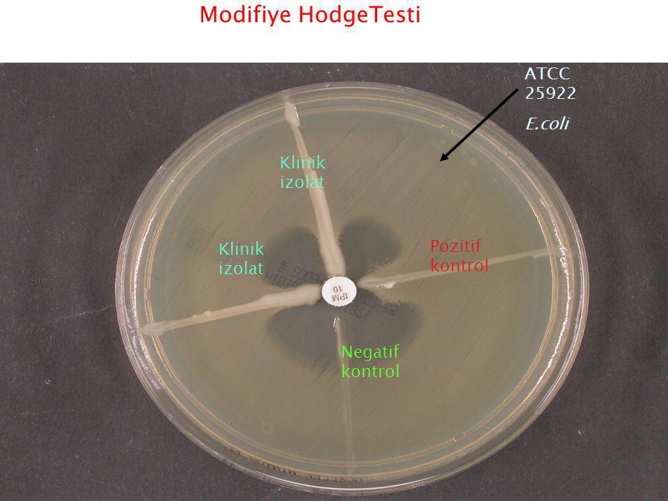 Modifiye HodgeTesti ATCC 25922 E.coli Klinik izolat Pozitif kontrol