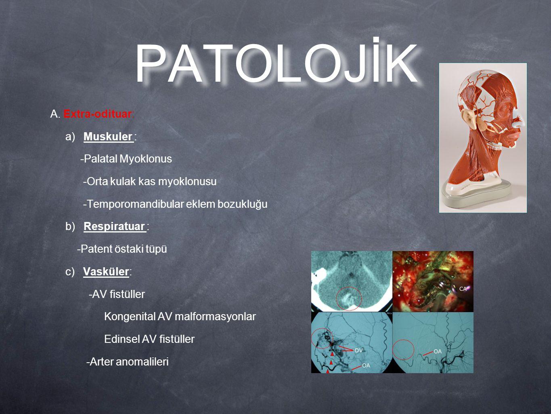 PATOLOJİK A. Extra-odituar: a) Muskuler : -Palatal Myoklonus