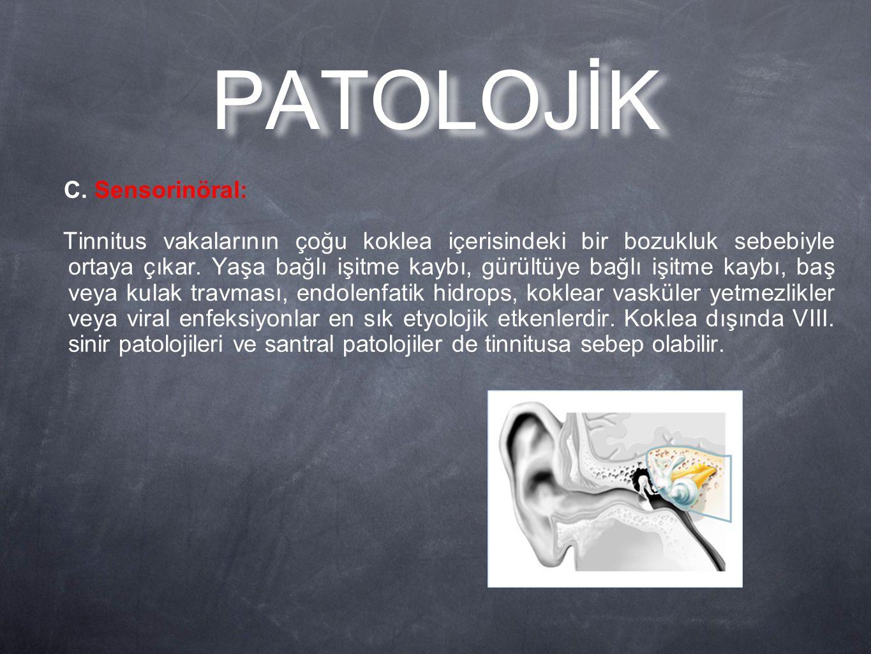 PATOLOJİK C. Sensorinöral: