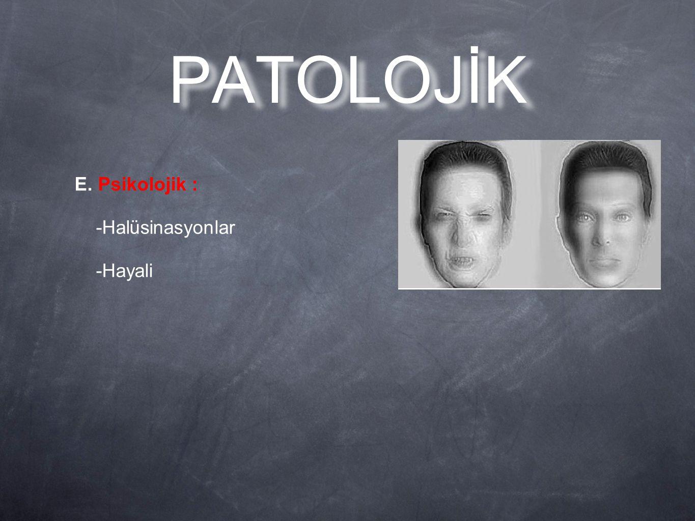 PATOLOJİK E. Psikolojik : -Halüsinasyonlar -Hayali