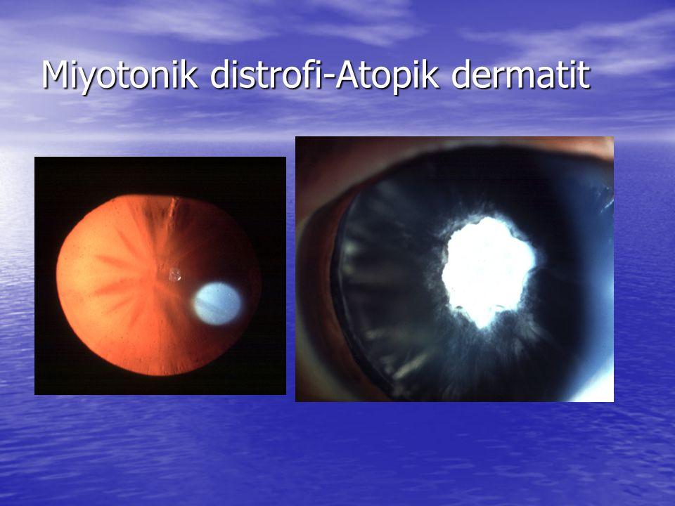 Miyotonik distrofi-Atopik dermatit