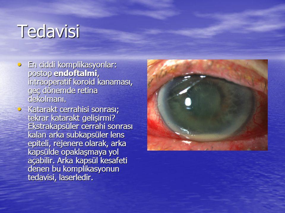 Tedavisi En ciddi komplikasyonlar: postop endoftalmi, intraoperatif koroid kanaması, geç dönemde retina dekolmanı.