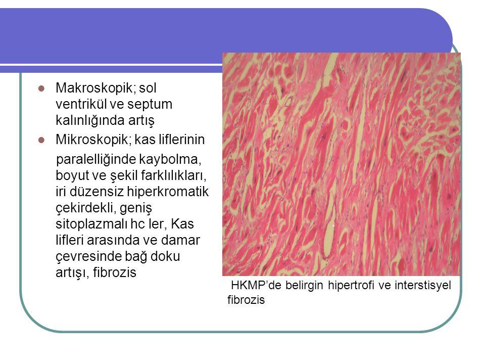 Makroskopik; sol ventrikül ve septum kalınlığında artış