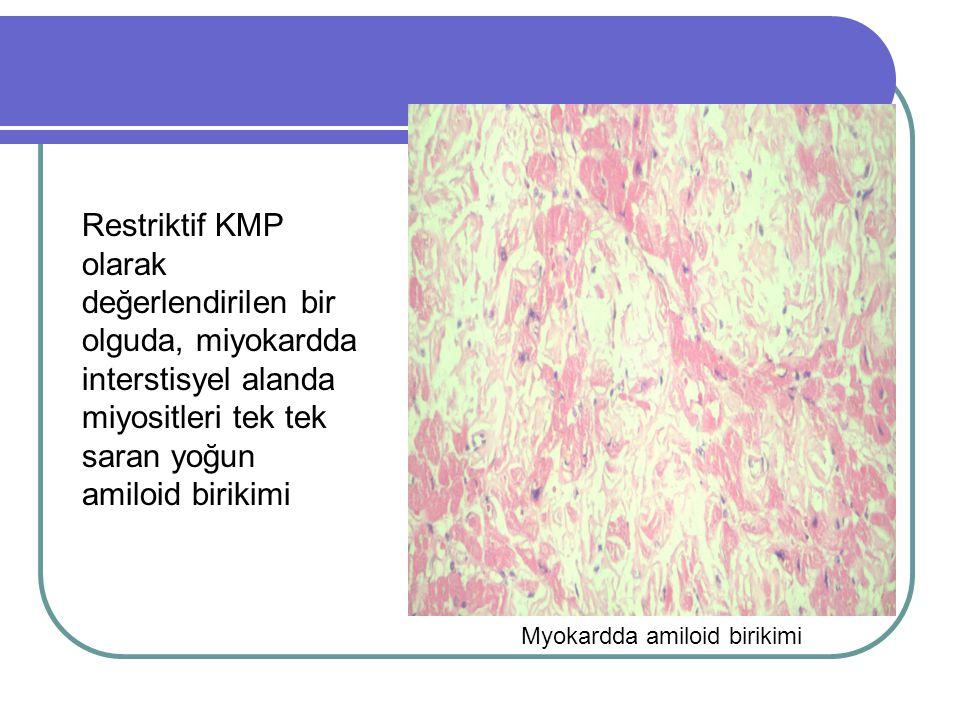 Restriktif KMP olarak değerlendirilen bir olguda, miyokardda interstisyel alanda miyositleri tek tek saran yoğun amiloid birikimi