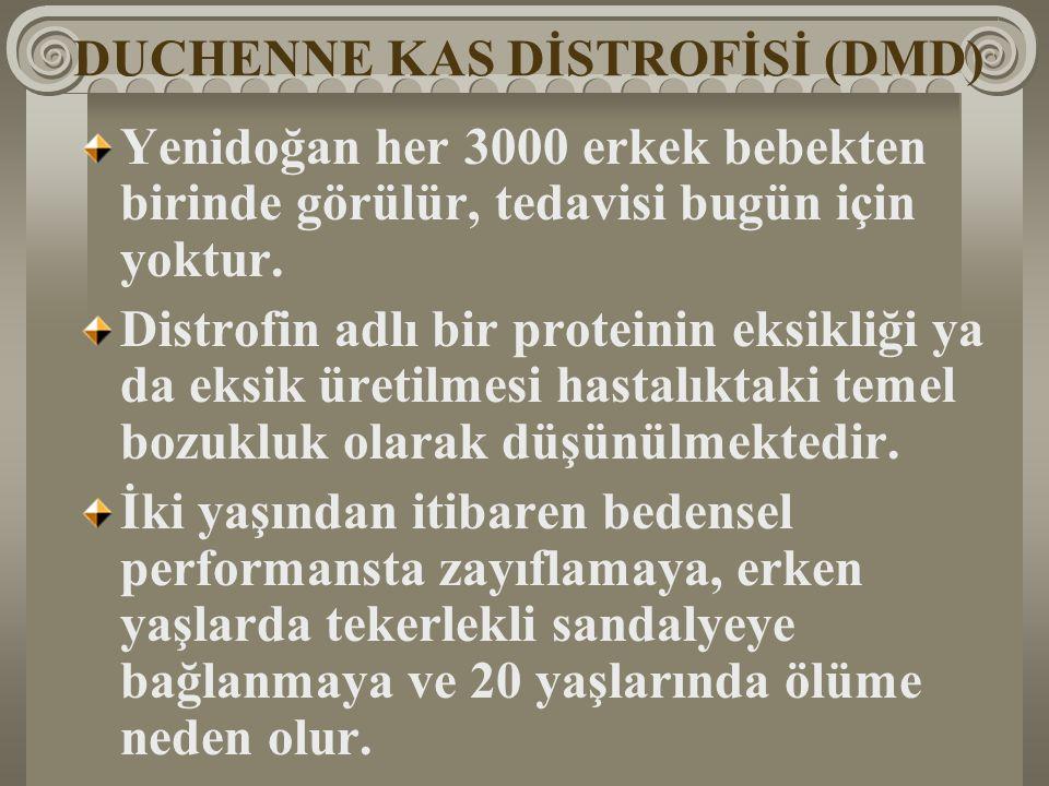 DUCHENNE KAS DİSTROFİSİ (DMD)