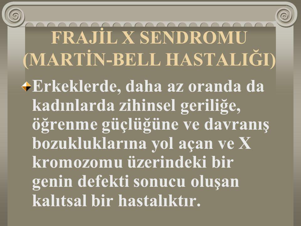 FRAJİL X SENDROMU (MARTİN-BELL HASTALIĞI)