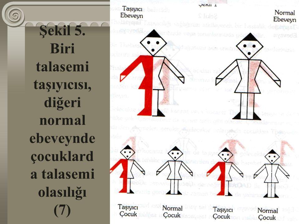 Şekil 5. Biri talasemi taşıyıcısı, diğeri normal ebeveynde çocuklarda talasemi olasılığı (7)