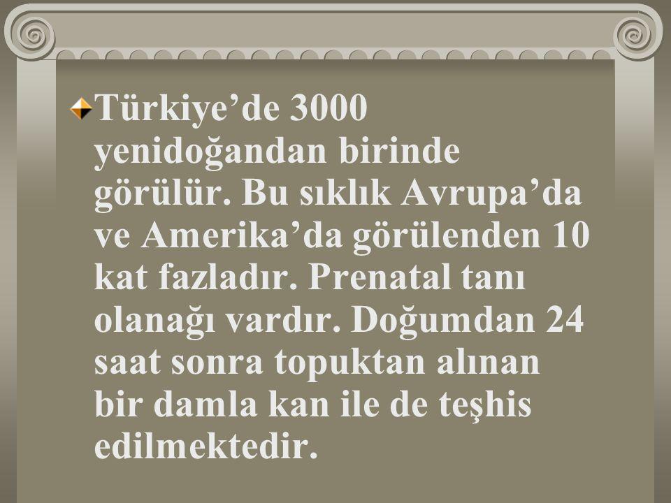 Türkiye'de 3000 yenidoğandan birinde görülür