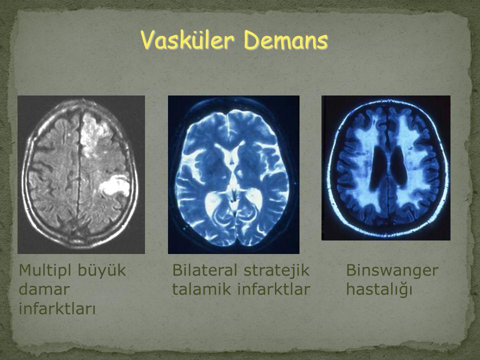 Vasküler Demans Multipl büyük damar infarktları Bilateral stratejik