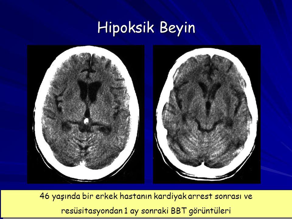 Hipoksik Beyin 46 yaşında bir erkek hastanın kardiyak arrest sonrası ve.