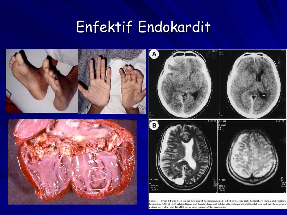 Enfektif Endokardit