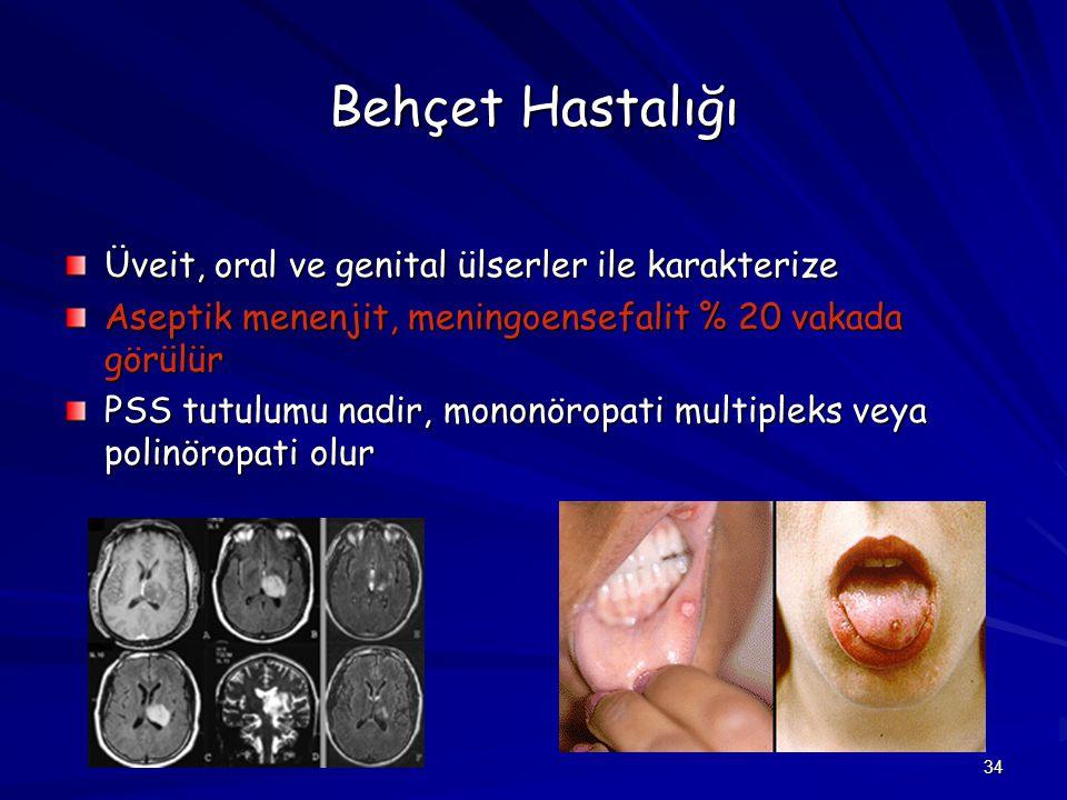 Behçet Hastalığı Üveit, oral ve genital ülserler ile karakterize