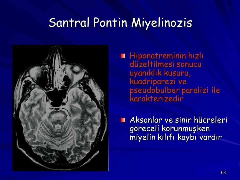Santral Pontin Miyelinozis