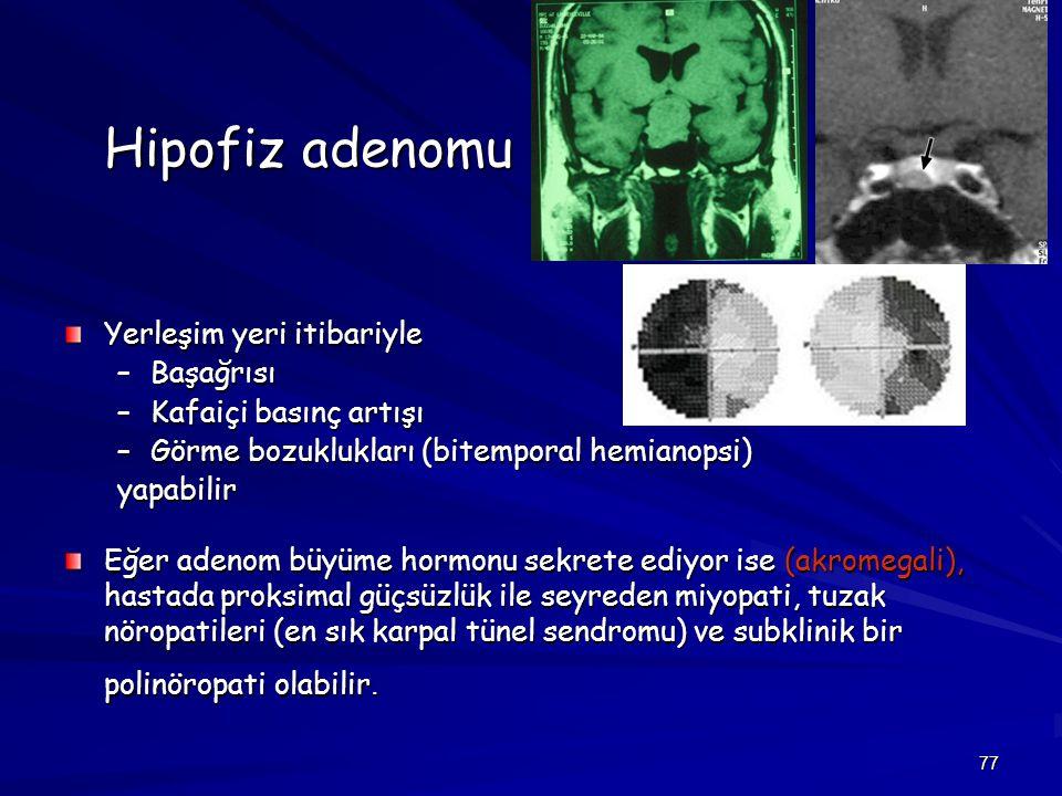 Hipofiz adenomu Yerleşim yeri itibariyle Başağrısı