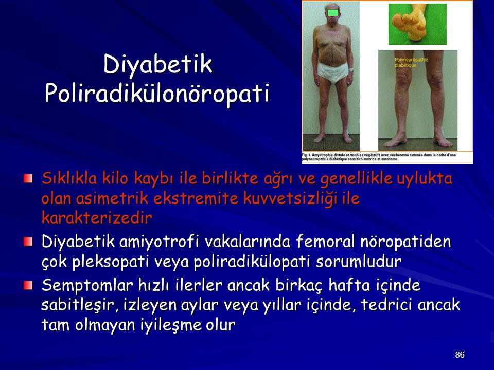 Diyabetik Poliradikülonöropati