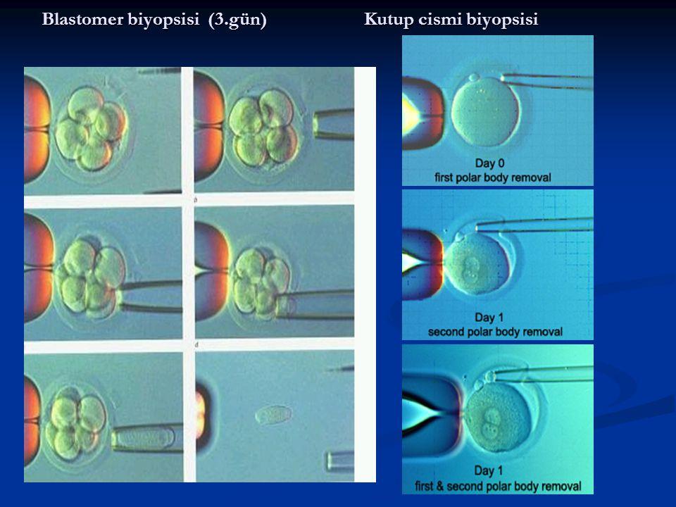 Blastomer biyopsisi (3.gün) Kutup cismi biyopsisi