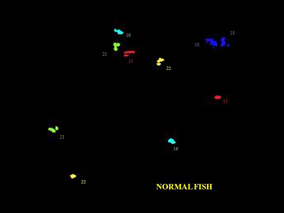 18 16 18 21 13 22 13 21 16 22 NORMAL FISH