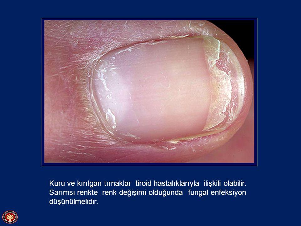 Kuru ve kırılgan tırnaklar tiroid hastalıklarıyla ilişkili olabilir