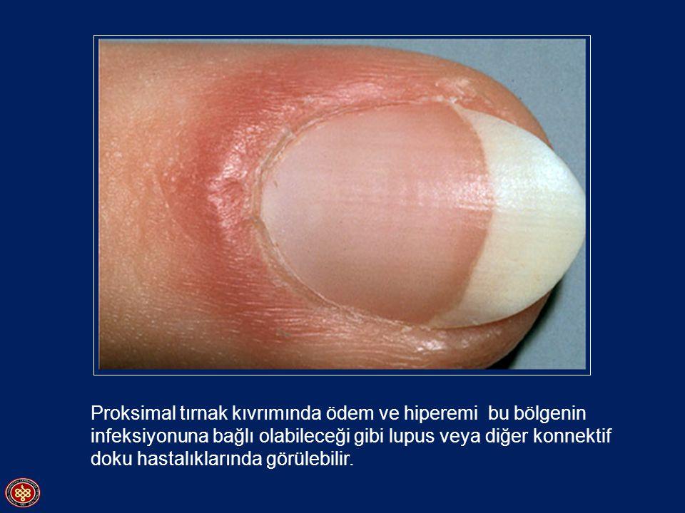 Proksimal tırnak kıvrımında ödem ve hiperemi bu bölgenin infeksiyonuna bağlı olabileceği gibi lupus veya diğer konnektif doku hastalıklarında görülebilir.