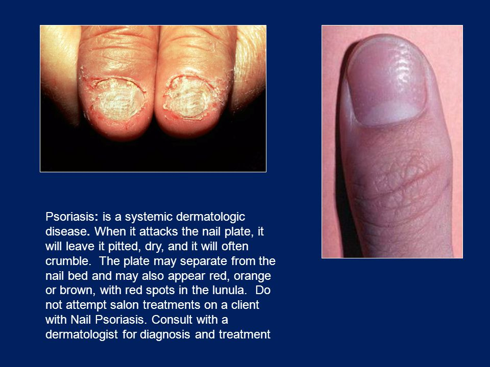 Psoriasis: is a systemic dermatologic disease
