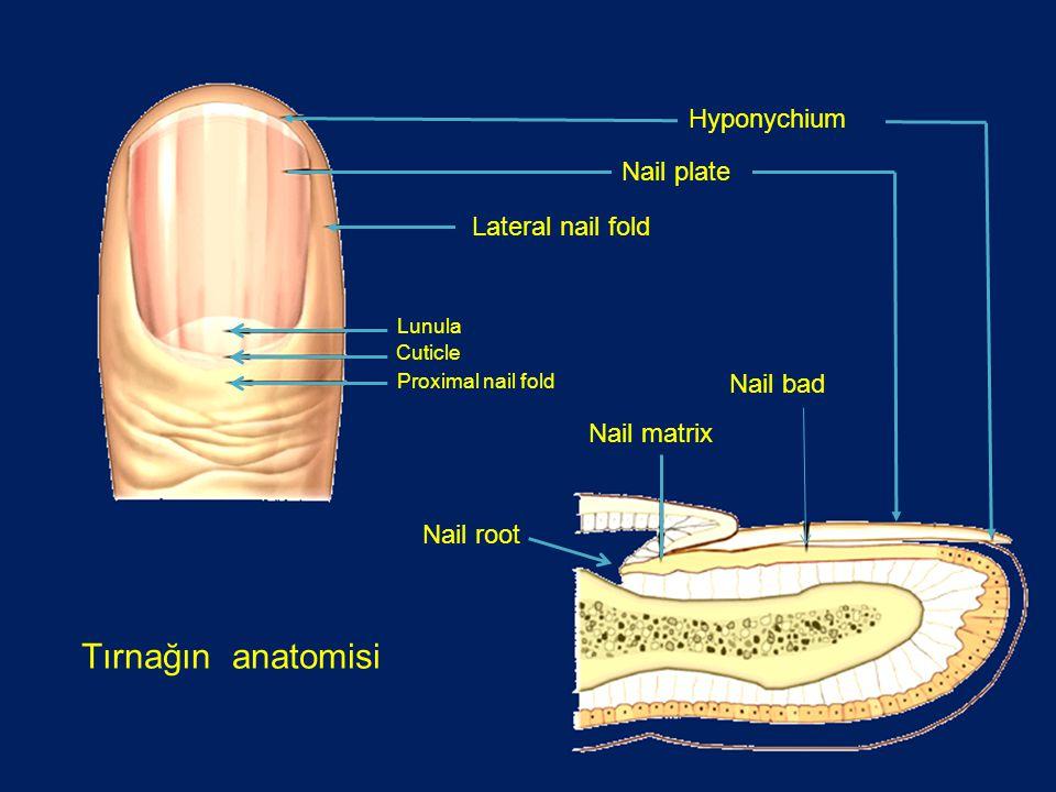 Tırnağın anatomisi Hyponychium Nail plate Lateral nail fold Nail bad