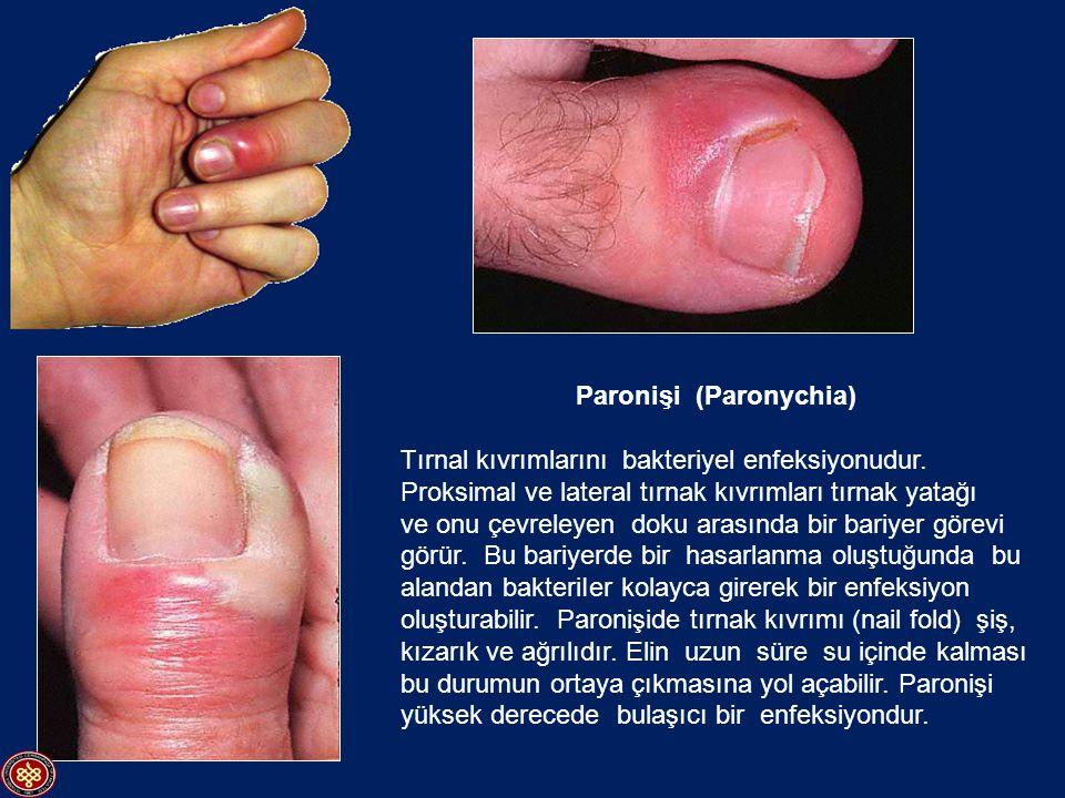 Paronişi (Paronychia)