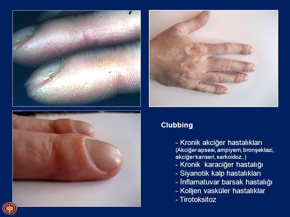 Clubbing - Kronik akciğer hastalıkları (Akciğer apsesi, ampiyem, bronşektazi, akciğer kanseri, sarkoidoz..)