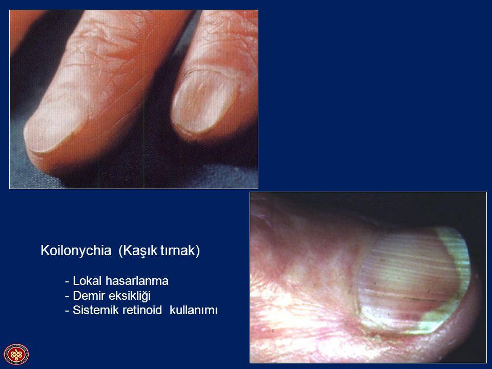 Koilonychia (Kaşık tırnak)