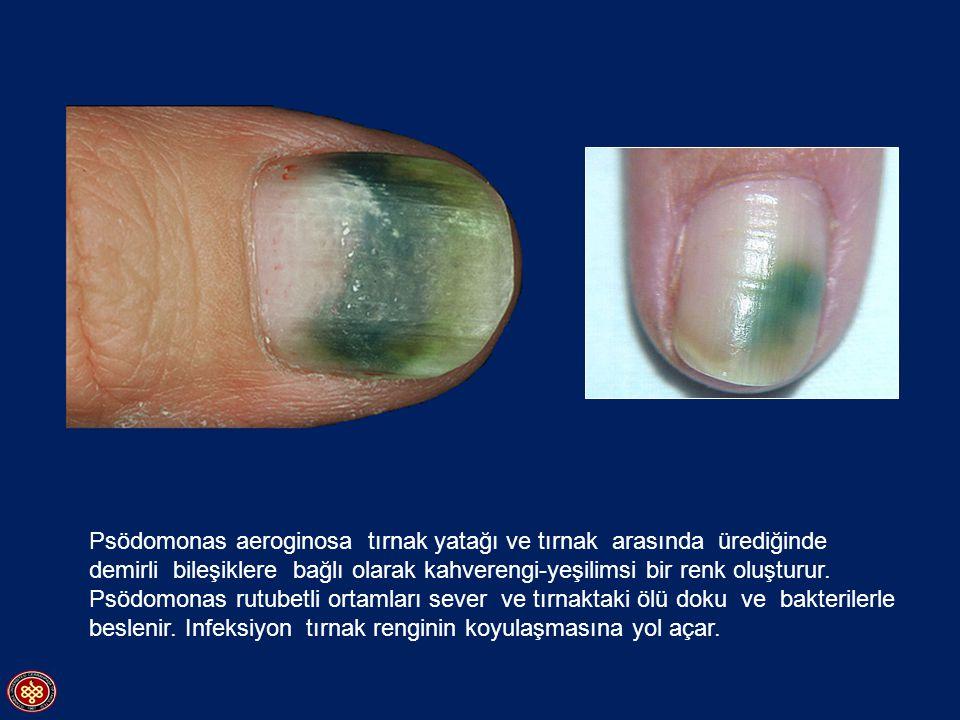 Psödomonas aeroginosa tırnak yatağı ve tırnak arasında ürediğinde demirli bileşiklere bağlı olarak kahverengi-yeşilimsi bir renk oluşturur.