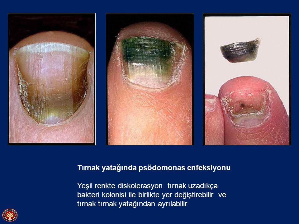 Tırnak yatağında psödomonas enfeksiyonu