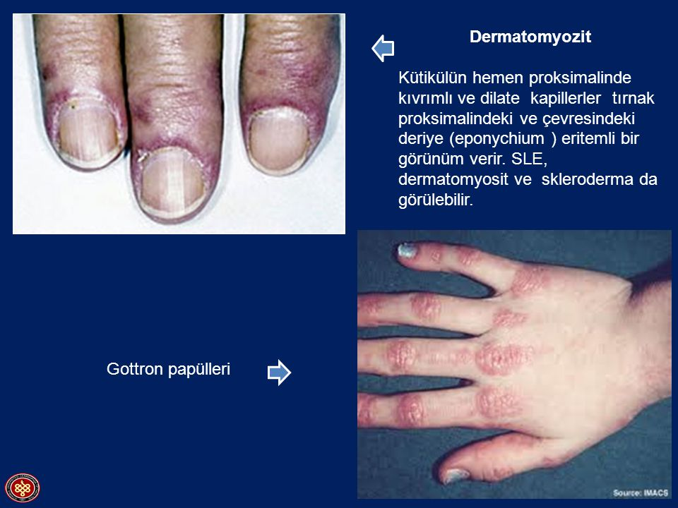 Dermatomyozit