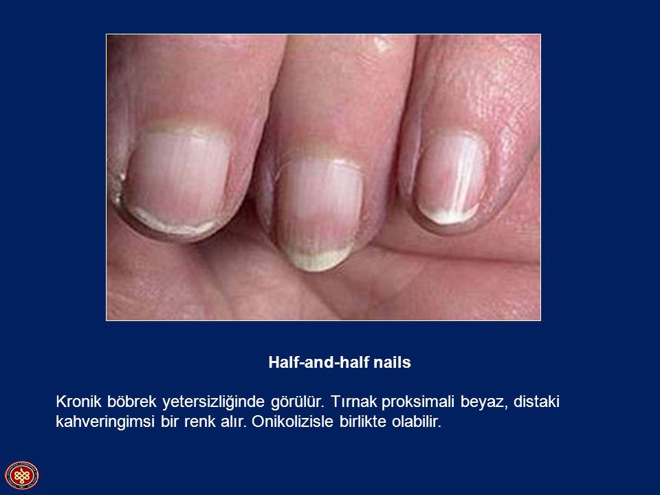 Half-and-half nails