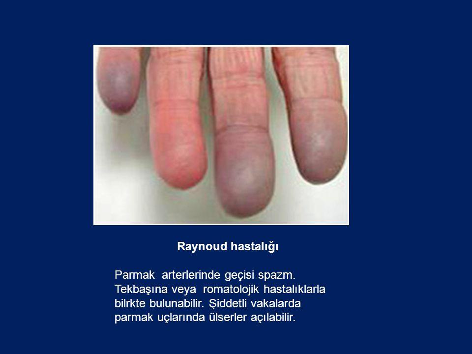 Raynoud hastalığı