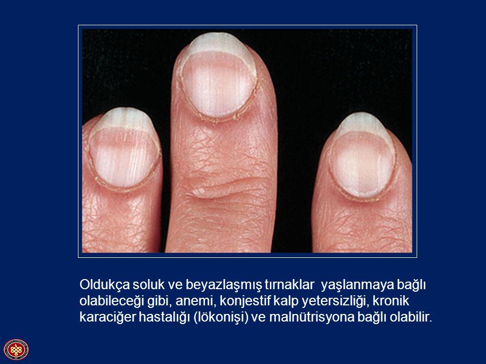 Oldukça soluk ve beyazlaşmış tırnaklar yaşlanmaya bağlı olabileceği gibi, anemi, konjestif kalp yetersizliği, kronik karaciğer hastalığı (lökonişi) ve malnütrisyona bağlı olabilir.