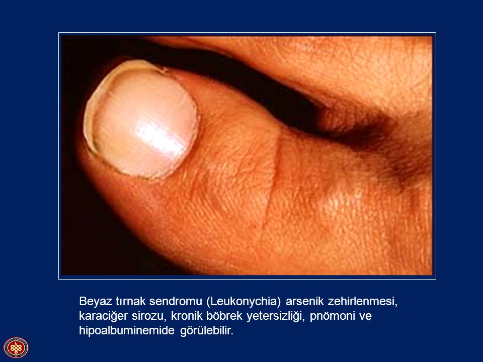 Beyaz tırnak sendromu (Leukonychia) arsenik zehirlenmesi, karaciğer sirozu, kronik böbrek yetersizliği, pnömoni ve hipoalbuminemide görülebilir.