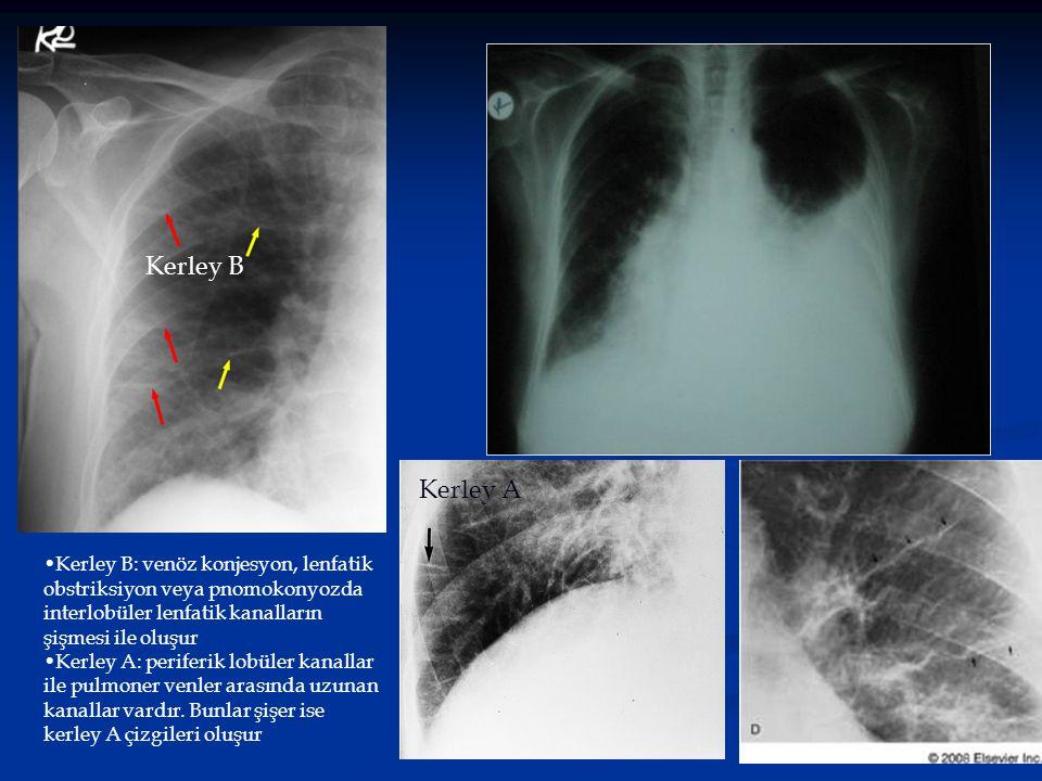 Kerley B Kerley A. Kerley B: venöz konjesyon, lenfatik obstriksiyon veya pnomokonyozda interlobüler lenfatik kanalların şişmesi ile oluşur.