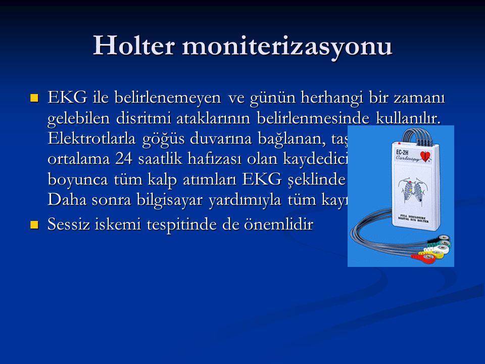Holter moniterizasyonu
