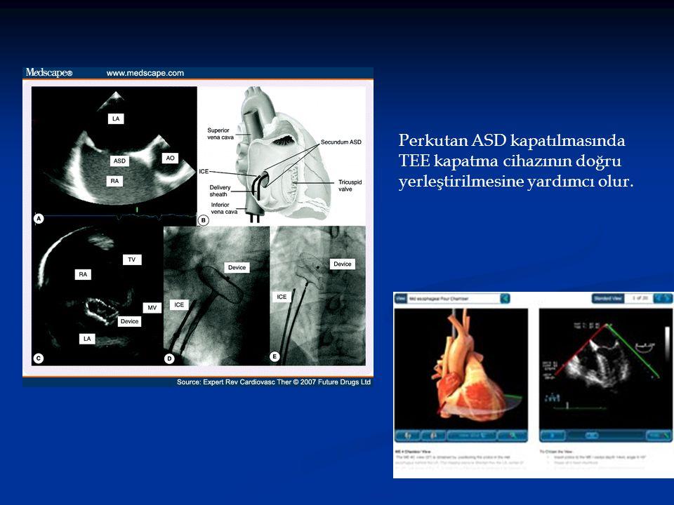 Perkutan ASD kapatılmasında TEE kapatma cihazının doğru yerleştirilmesine yardımcı olur.