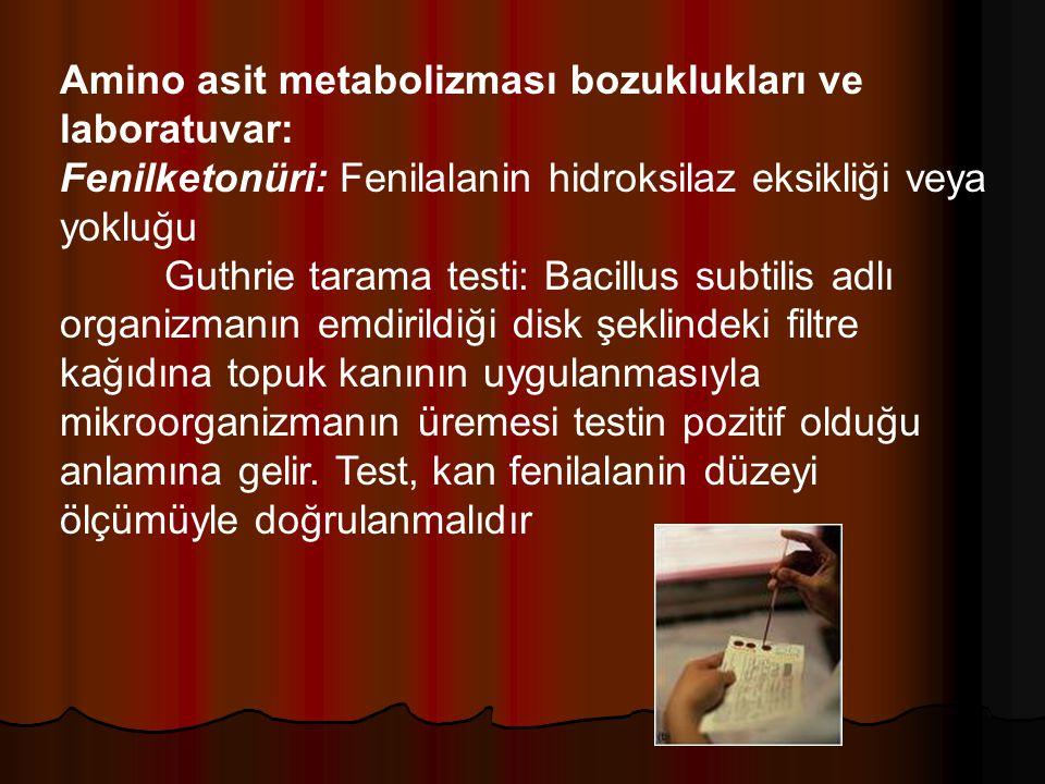 Amino asit metabolizması bozuklukları ve laboratuvar: