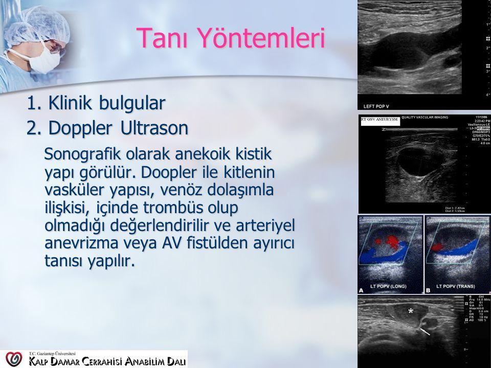 Tanı Yöntemleri 1. Klinik bulgular 2. Doppler Ultrason